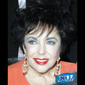 "Liz Taylor Says Her Heart Surgery Went ""Perfectly"""