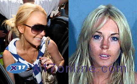 Lindsay Lohan LindsBeforeandAfter.jpg