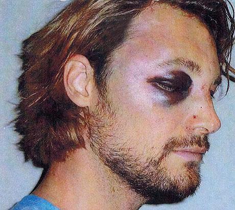 gabriel_aubry_injured_460_2.jpg