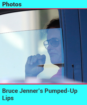 Bruce Jenner' Pumped-Up Lips